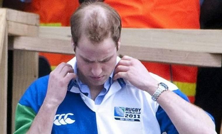 Χάνει τα μαλλιά του ο πρίγκιπας William