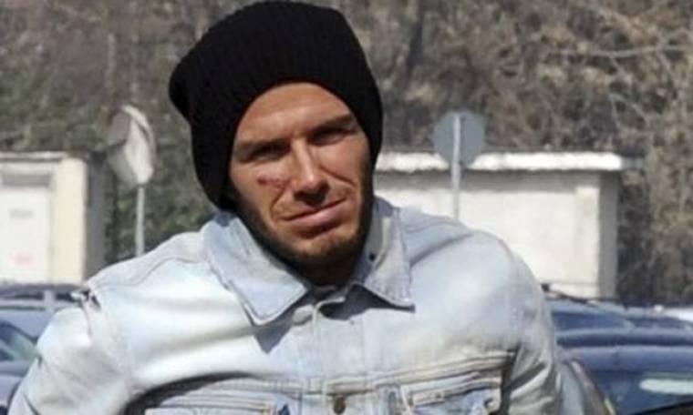Στο Mundial o David Beckham αν και... τραυματίας