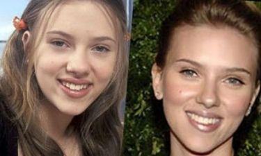 Ποιος είναι ο καλύτερος φίλος της Scarlett Johansson; Ο χρόνος ή ο πλαστικός της;