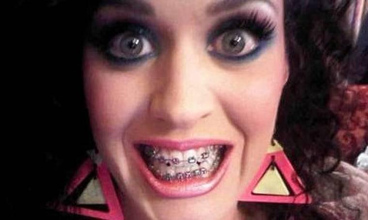 Η Katy Perry φόρεσε σιδεράκια…