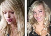 Δείτε πώς είναι σήμερα η παρουσιάστρια που είχε πέσει θύμα επίθεσης με οξύ