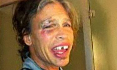 Η πρώτη φωτογραφία του Steven Tyler μετά την πτώση