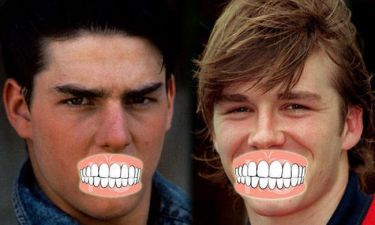 Διάσημα δόντια: Πριν και μετά