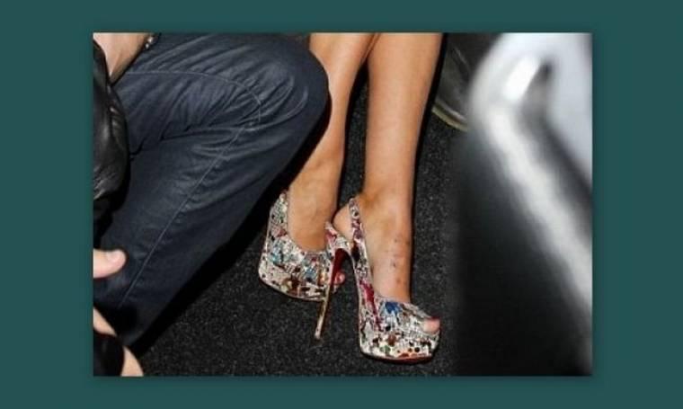 Απίστευτο! Οι γόβες της κατέστρεψαν το πόδι!