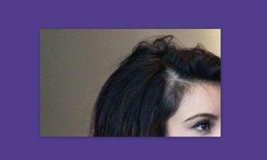 Ποια σταρ χάνει τα μαλλιά της;