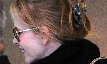 Χάνει και η Nicole Kidman μαλλιά;