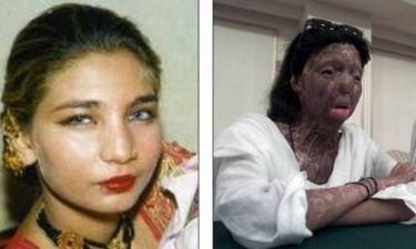 Αυτοκτόνησε πρώην χορεύτρια, θύμα επίθεσης με οξύ
