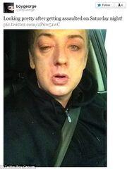 Με μαυρισμένο μάτι γνωστός τραγουδιστής μετά από επίθεση! (φωτό)