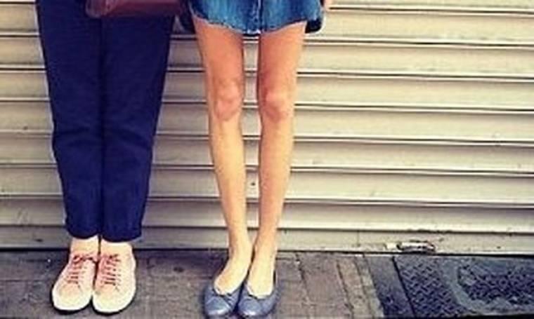 Τα σκελετωμένα πόδια γνωστού μοντέλου και παρουσιάστριας