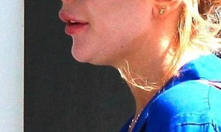 Τι συνέβη στα χείλη της…