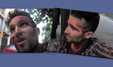 Άγριος ξυλοδαρμός Ισραηλινού ανταποκριτή κατά τη διάρκεια ρεπορτάζ του για την Χρυσή Αυγή!