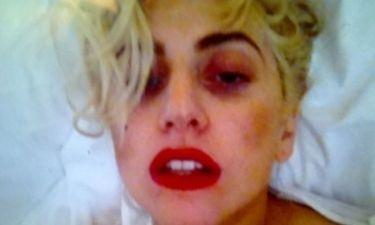 Το πρόσωπο της Lady Gaga μετά τον τραυματισμό