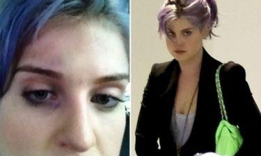Ποιος μαύρισε το μάτι της Kelly Osbourne;