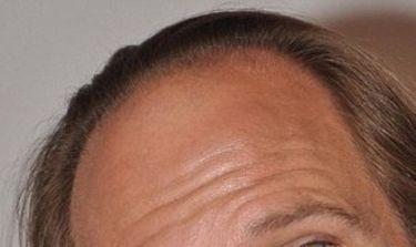 Χάνει ακόμη περισσότερα μαλλιά ο…