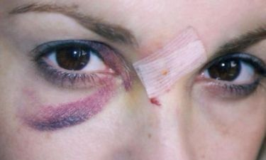 ΑΠΟΚΛΕΙΣΤΙΚΟ: Με μαυρισμένο μάτι πασίγνωστη Ελληνίδα ηθοποιός. Τι της συνέβη;
