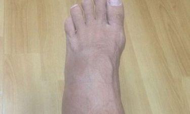 Ποιος διάσημος μας δείχνει το σπασμένο πόδι του;