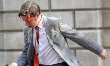 Τι συνέβη στον James McAvoy;