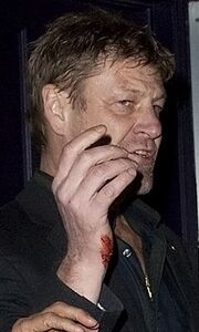 Διάσημος ηθοποιός επιτέθηκε σε φωτογράφο!