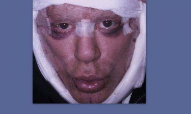 Δείτε τις σοκαριστικές φωτογραφίες του Mickey Rourke μετά την τελευταία πλαστική