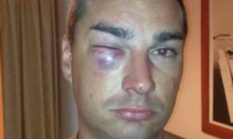 Καταγγελία τουρίστα:«Με λήστεψαν και με χτύπησαν αστυνομικοί»