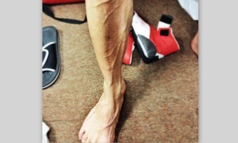 Σε ποιον αθλητή ανήκει αυτό το πόδι;
