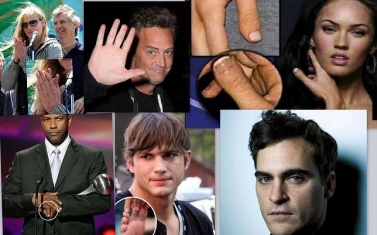 Οι φυσικές ατέλειες των σταρ του Χόλιγουντ: Έξι δάχτυλα, σιαμαίοι, κομμένα άκρα…