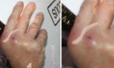 Άγριος καβγάς επωνύμων! Πιάστηκαν στα χέρια για μια γυναίκα-Δείτε φωτό από τον τραυματισμό τους!