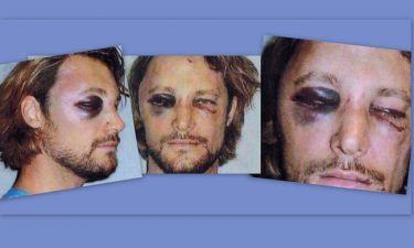ΣΟΚ! Τον «έσπασε στο ξύλο» ο Olivier Martinez τον πρώην της Halle Berry (φωτό)