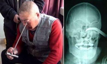 ΕΙΚΟΝΕΣ ΣΟΚ: Του καρφώθηκε στο μάτι ένας γάντζος