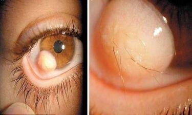 ΦΡΙΚΗ: Δείτε τι φύτρωσε μέσα στο μάτι του!