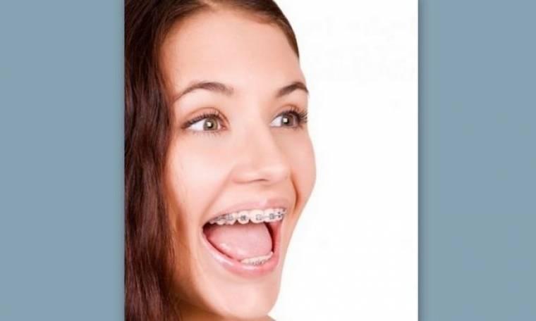 Μετά τα σιδεράκια τι; μάθετε πως θα βελτιώσετε το χαμόγελό σας μετά την ορθοδοντική