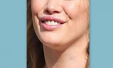 Ποια νεαρή διάσημη μαμά παραμόρφωσε τα χείλη της με botox;