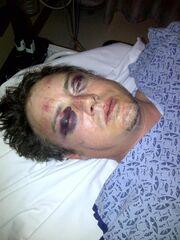 Σοκαριστική φωτογραφία ηθοποιού που τον έκαναν «μαύρο στο ξύλο»! Τον χτύπαγαν ακόμη και όταν ήταν αναίσθητος!
