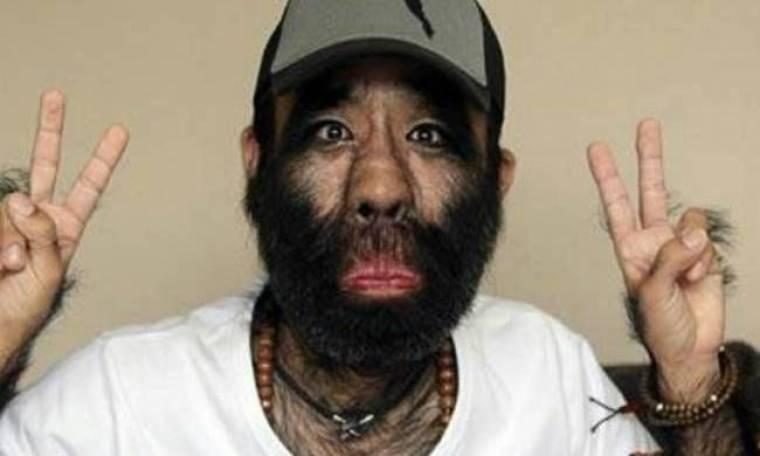 Aπίστευτες εικόνες: Δείτε τον πιο τριχωτό άνθρωπο στον κόσμο
