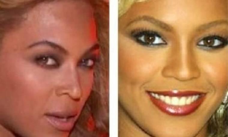 Beyonce: Έκανε ρινοπλαστική;