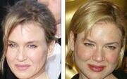 Renee Zellweger: Μήπως τo παράκανες με τα botox;