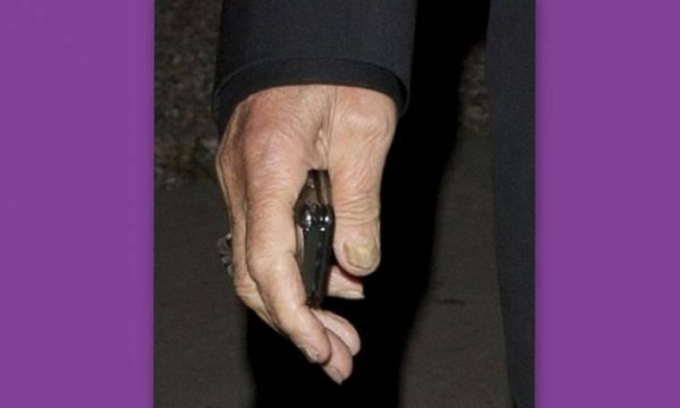 Ποιος διάσημος σταρ του Hollywood υποφέρει από μύκητες στα νύχια;