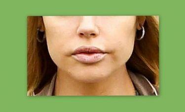 Παραμορφώθηκαν τα χείλη γνωστής ηθοποιού από τις πλαστικές