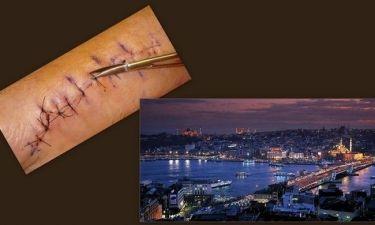 Συνέβη στην Τουρκία : Έλληνας μοντέλο σε νοσοκομείο με σπασμένο πέος!!! (Nassos blog)