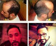 Δείτε ποιος τραγουδιστής έκανε εμφύτευση μαλλιών!