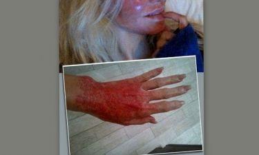 Ποια celebrity το παράκανε με τις θεραπείες και κατακάηκε σε πρόσωπο και χέρια;