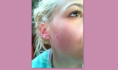 Την τσίμπησε κουνούπι στο μάγουλο!