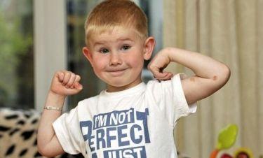 Πεντάχρονο αγόρι σώθηκε από σφοδρή σύγκρουση με αυτοκίνητο εξαιτίας του συνδρόμου που πάσχει!