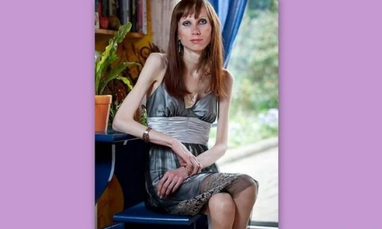 Η συγκλονιστική ιστορία της 30χρονης που είναι... εγκλωβισμένη σε σώμα ηλικιωμένης γυναίκας
