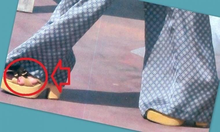 Πασίγνωστη Ελληνίδα σταρ με λάθος παπούτσι -για τα πόδια της- και το δαχτυλάκι έξω!
