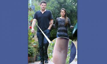 Σοκαριστικές εικόνες του πρωταγωνιστή του «Glee» μία βδομάδα μετά το θανατό του! Σημάδια από βελόνες στις φλέβες του!