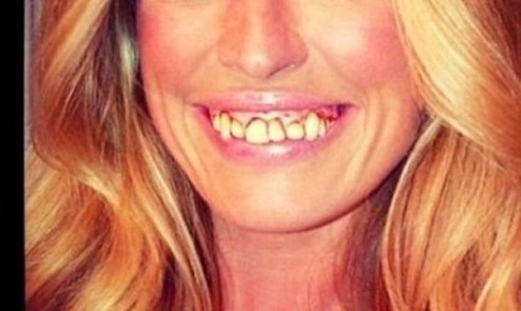 Ποια διάσημη Βρετανίδα διαθέτει αυτή την απαίσια οδοντοστοιχία;