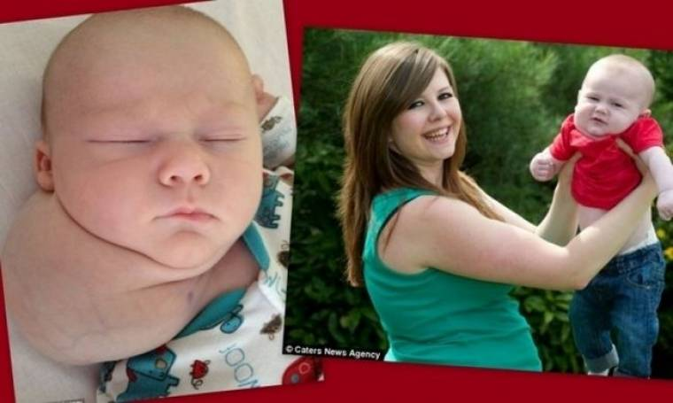 Η ιστορία του αγοριού που γεννήθηκε με τεράστια κύστη στον λαιμό!
