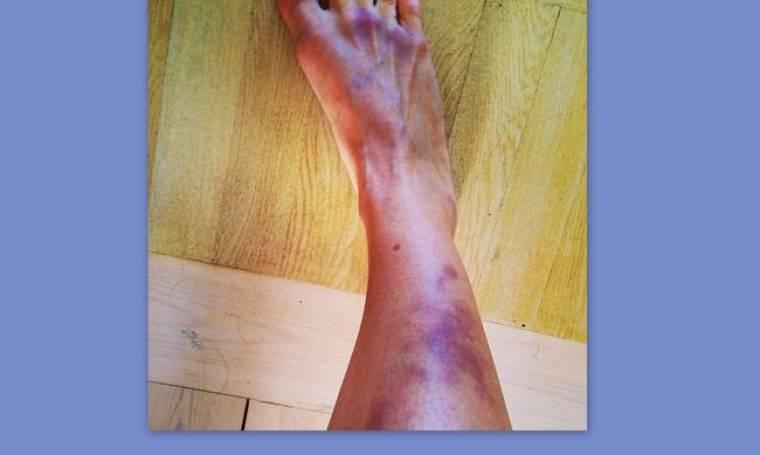 Με μελανιασμένο πόδι Ελληνίδα παρουσιάστρια. Τι της συνέβη;