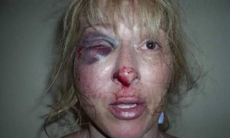 Βίντεο: Αστυνομικοί ξυλοκοπούν χωρίς λόγο 44χρονη γυναίκα